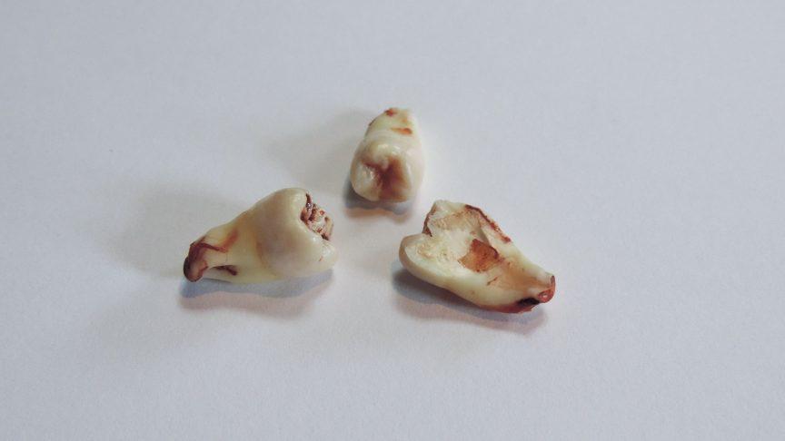 My actual teeth! PHOTO: Skyler Ash